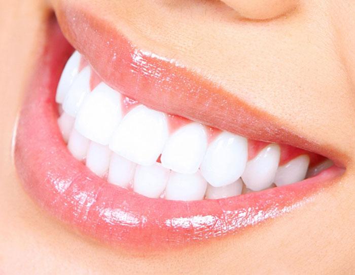 sourire-implant