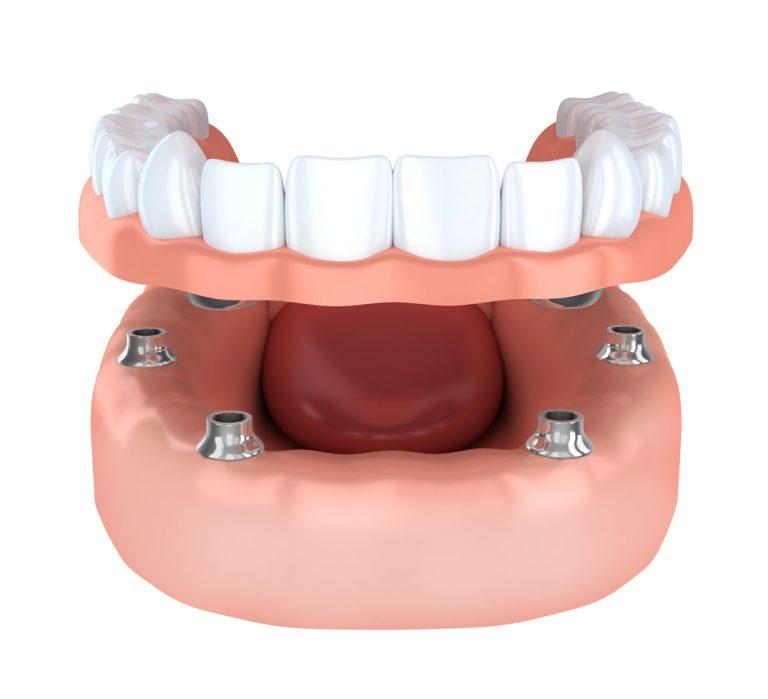 prothese-implanto-portee