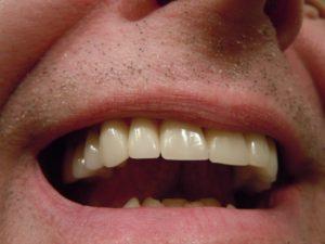 soigner parodontite