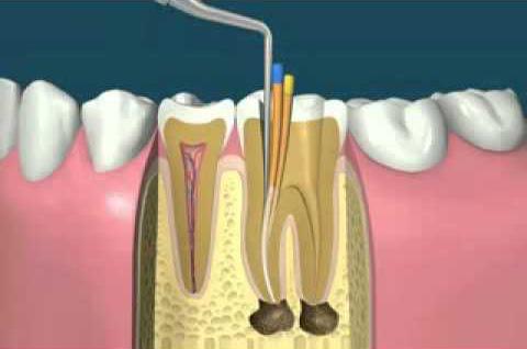 traitements endodontiques